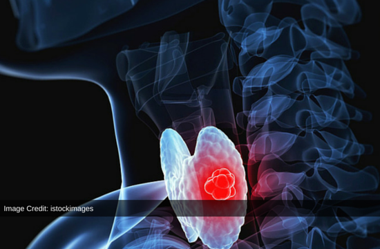 Immunotherapy May Prove An Important Therapy For Thyroid Cancer: Research Study