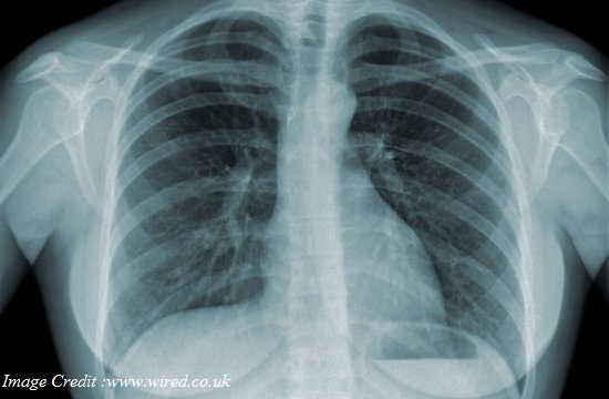 Protection against Tuberculosis with Immune Based Therapy