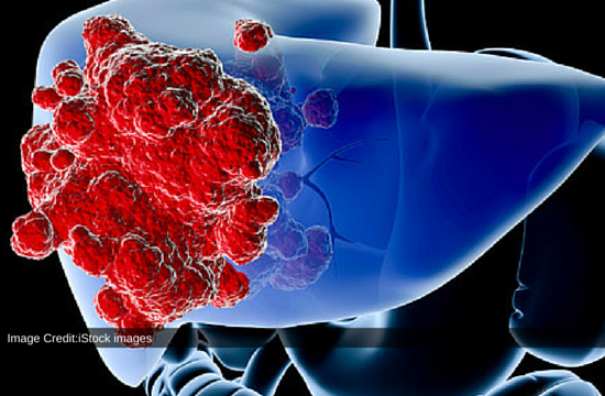 Researcher Discovered New Mechanism To Block The Growth Of Liver Cancer Cells: New Study