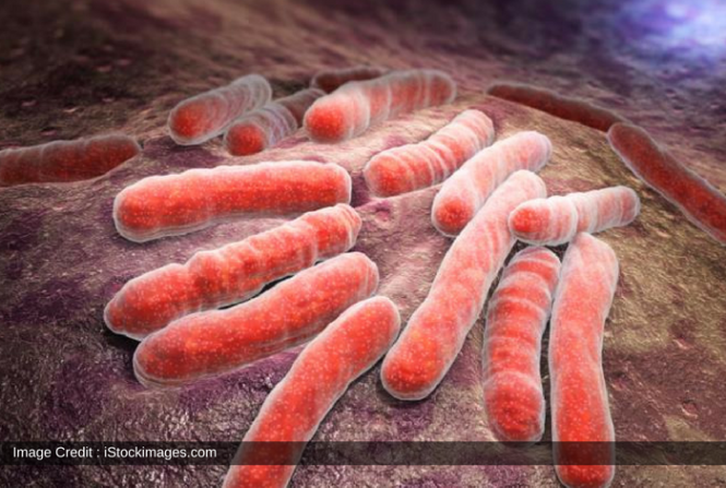 Russian Tuberculosis Are The Most Infectious: Scientists Provided Possible Explanation