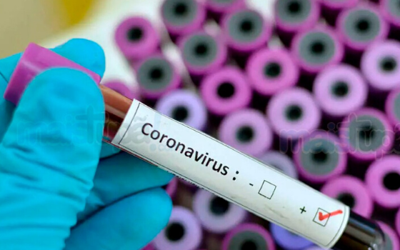 Coronavirus medication: A joint inflammation medication could be the appropriate response everybody is searching for