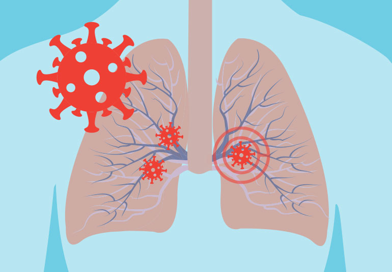 COVID-19 side effects outside lungs decoded