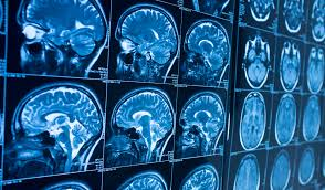 Novel neuroimaging investigation on dissociative side effects uncovers wounds of youth Trauma