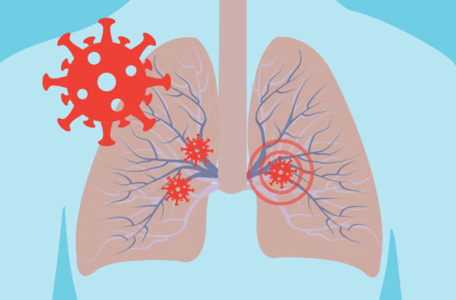 Microorganisms in the lungs could impact lung cancer progression and prognosis