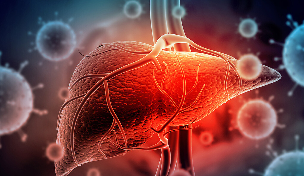 DT-109 Significantly Prevents Progression of Diet-Induced Non-Alcoholic Fatty Liver Disease
