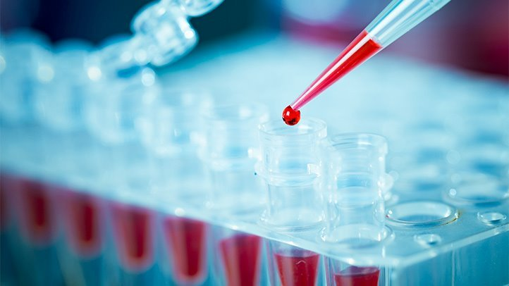 Biomarkers can foresee how hereditarily identical cells act distinctively under pressure