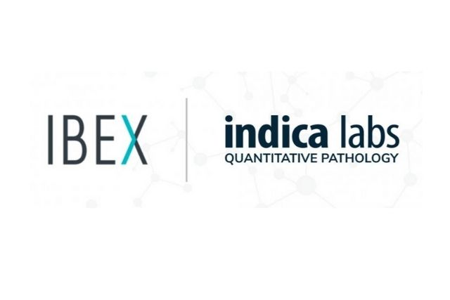 Indica Labs and Ibex Partner to Deliver AI-powered Clinical Workflows for Digital Pathology